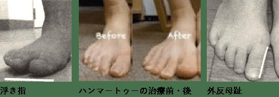 浮き指 ハンマートゥーの治療前・後 外反母趾